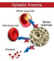 obat anemia aplastik