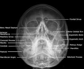 Adult+Facial+Bones+-+Occipito+Mental+%2528OM%2529+%2528Waters%2529+View.jpg