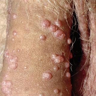 La psoriasis de la complicación a los riñones