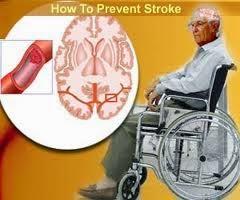 Penyebab Penyakit Stroke