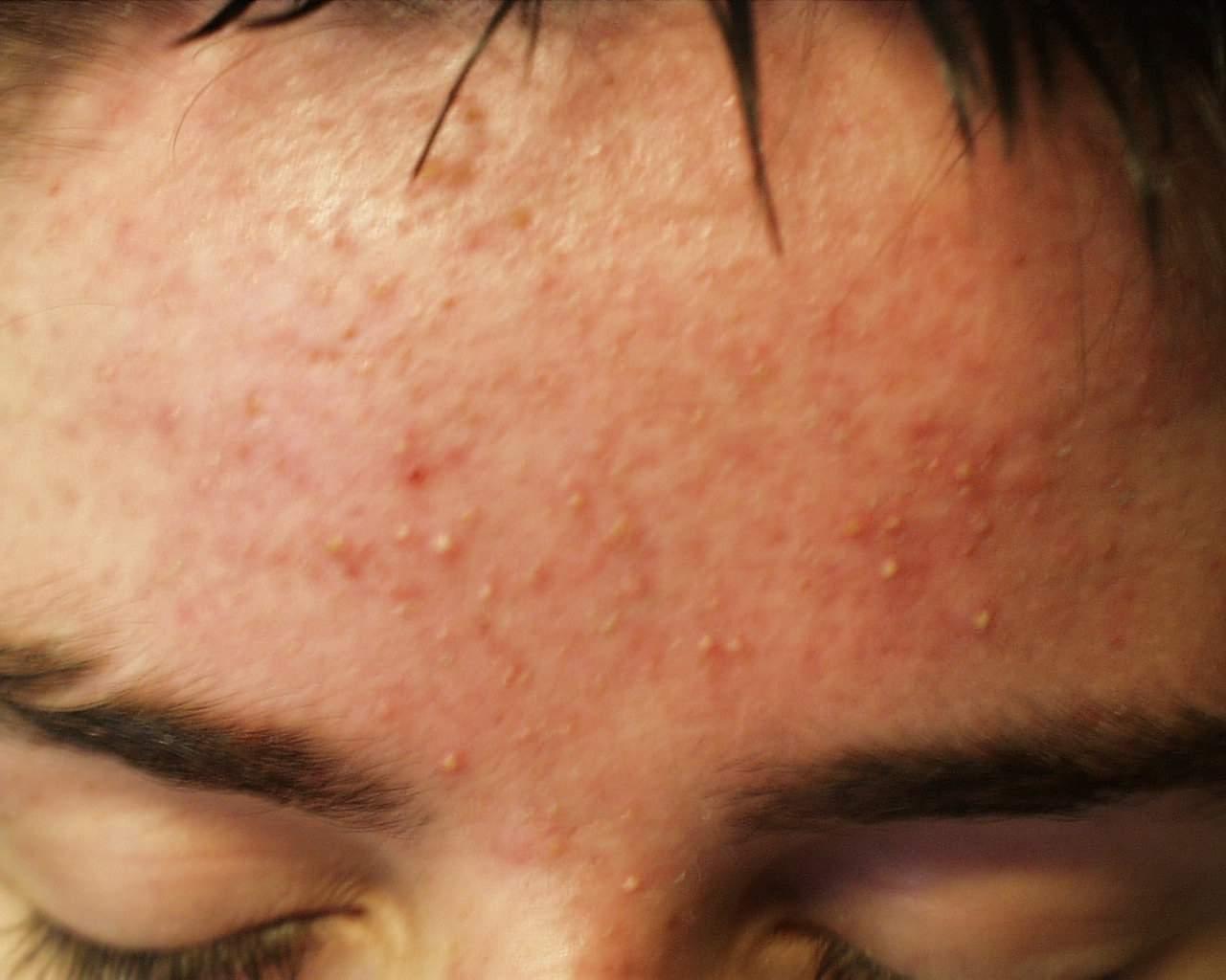 Medicina di acne forte