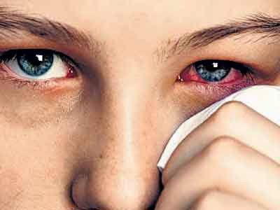 All About Sore Eyes Causes and Cures