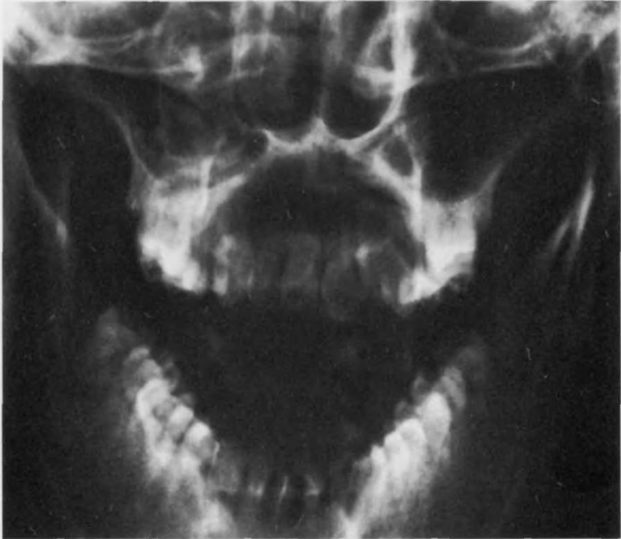 Пантомограмма Зубов фото
