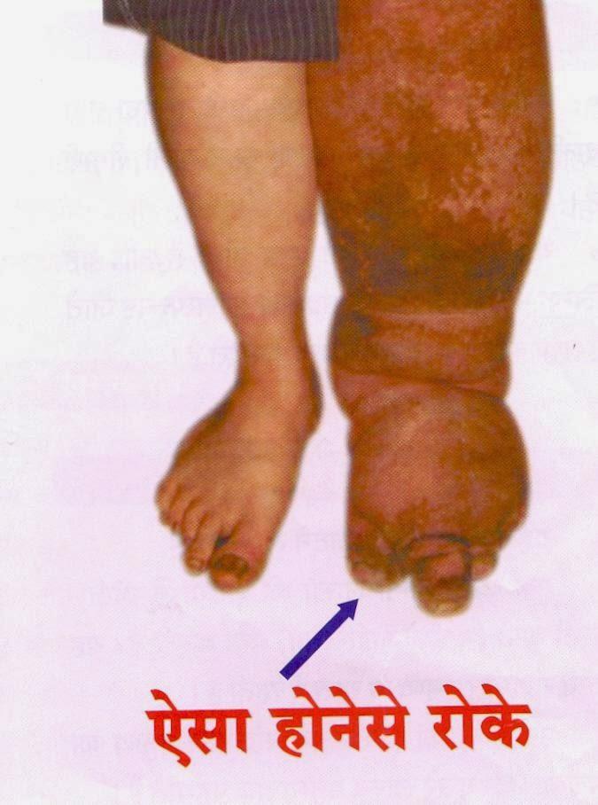 Filaria-causes-symptoms-treatment-hindi