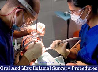 Oral And Maxillofacial Surgery Procedures
