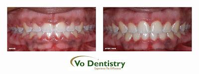 Gum Surgery, Laser Surgery