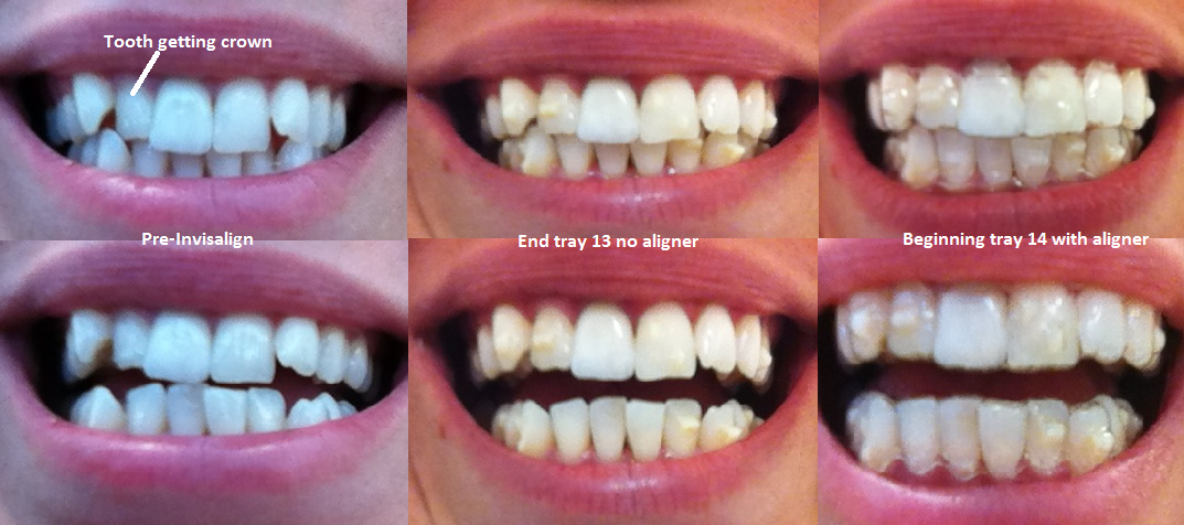 how to get invisalign trays out