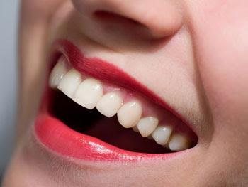 5 Cara Menghilangkan Gigi Kuning Parbada