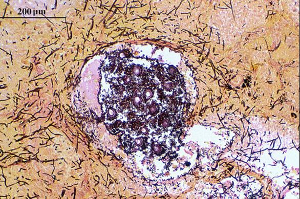 Aspergillus fumigatus hyphae