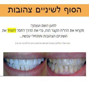 הסוף לשיניים צהובות!!