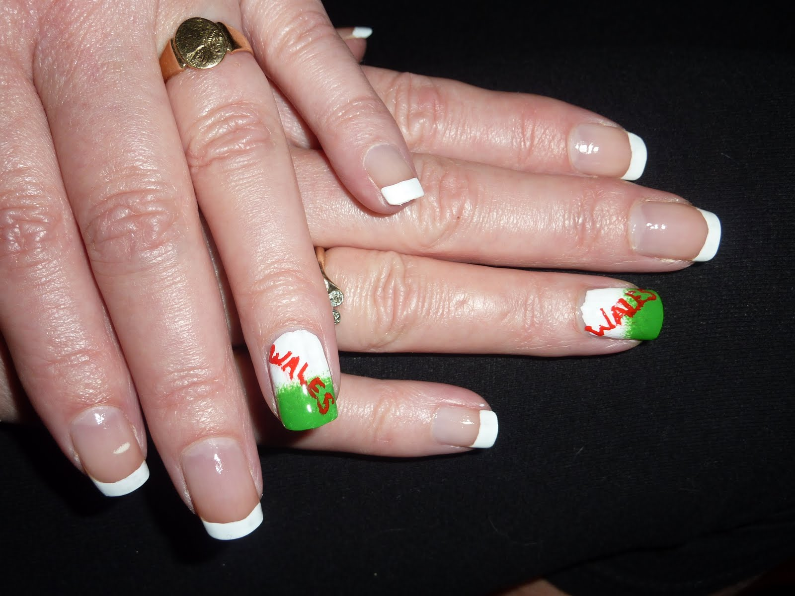 Gel nails in rugby