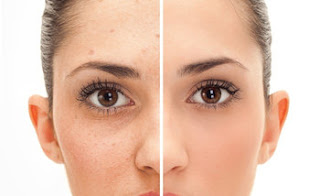 Vitamins can be the best acne treatment