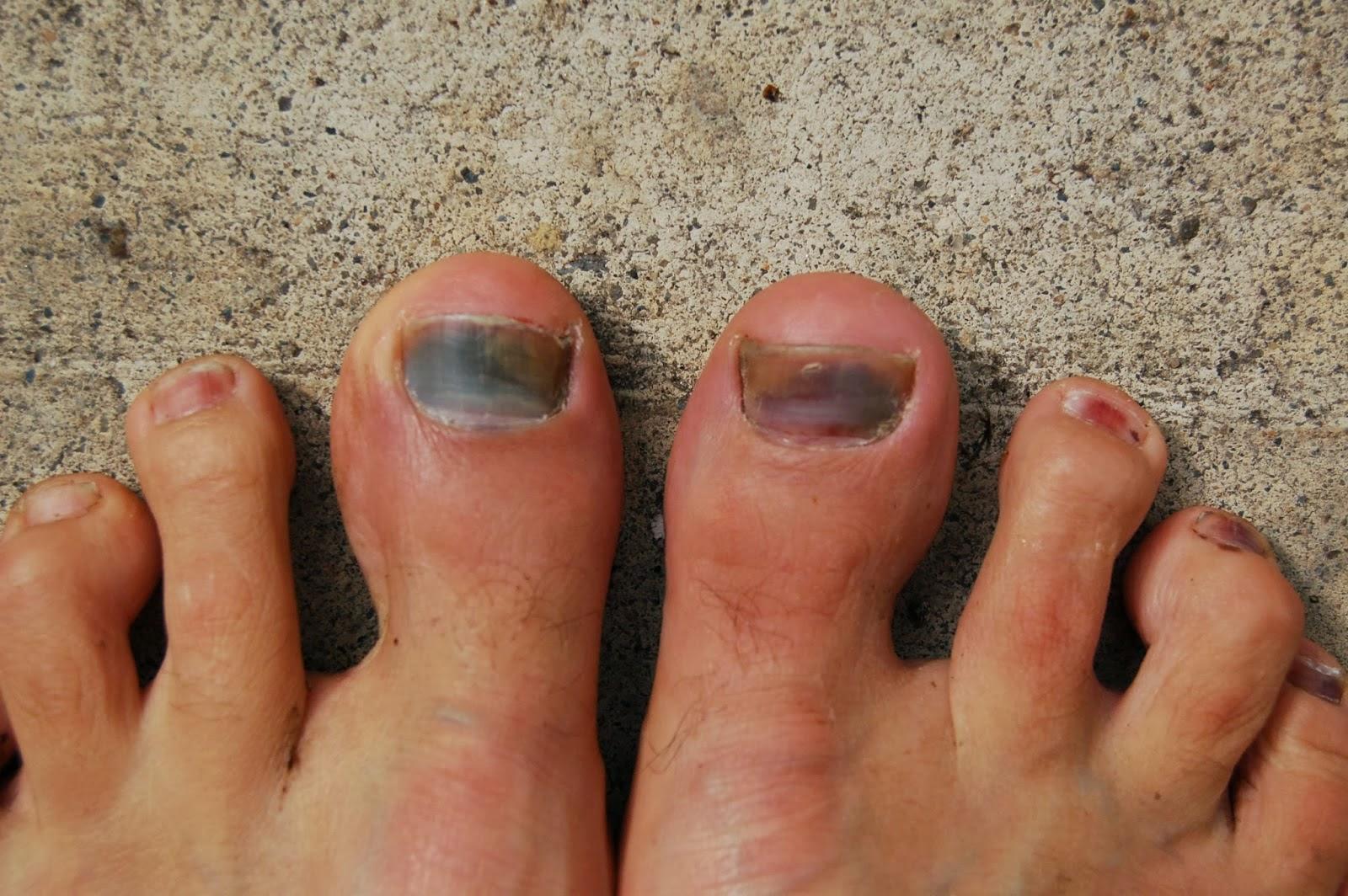 Nail fungus Causes - Mayo Clinic