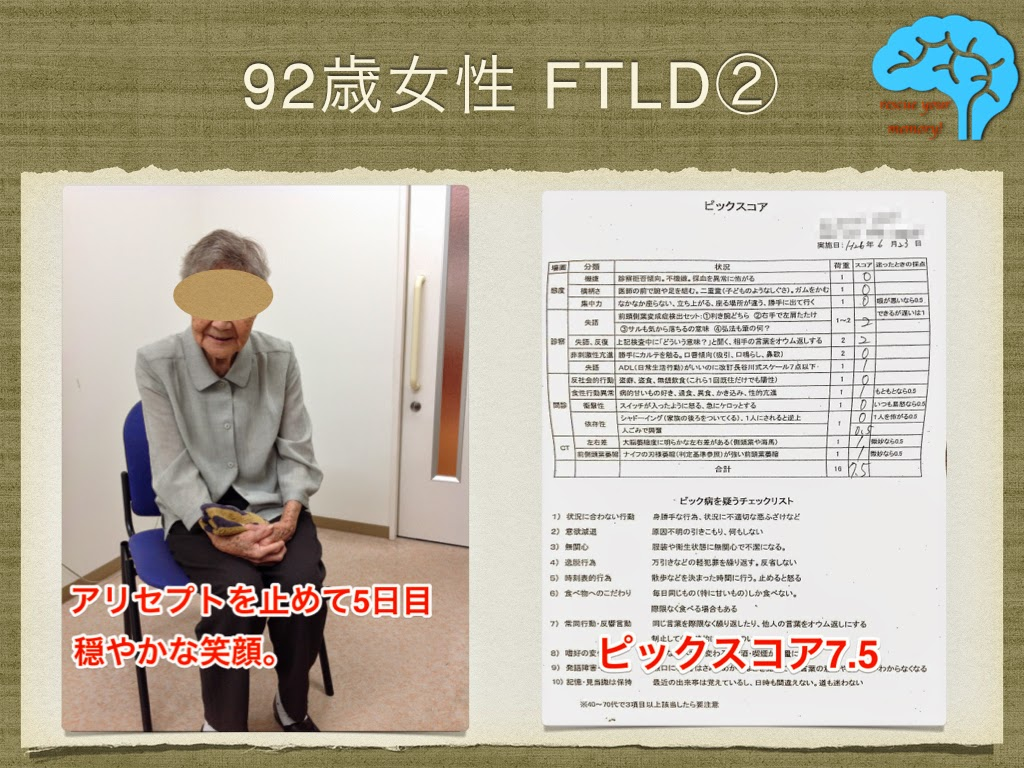 意味性認知症 92歳女性 アリセプト中止で穏やかに