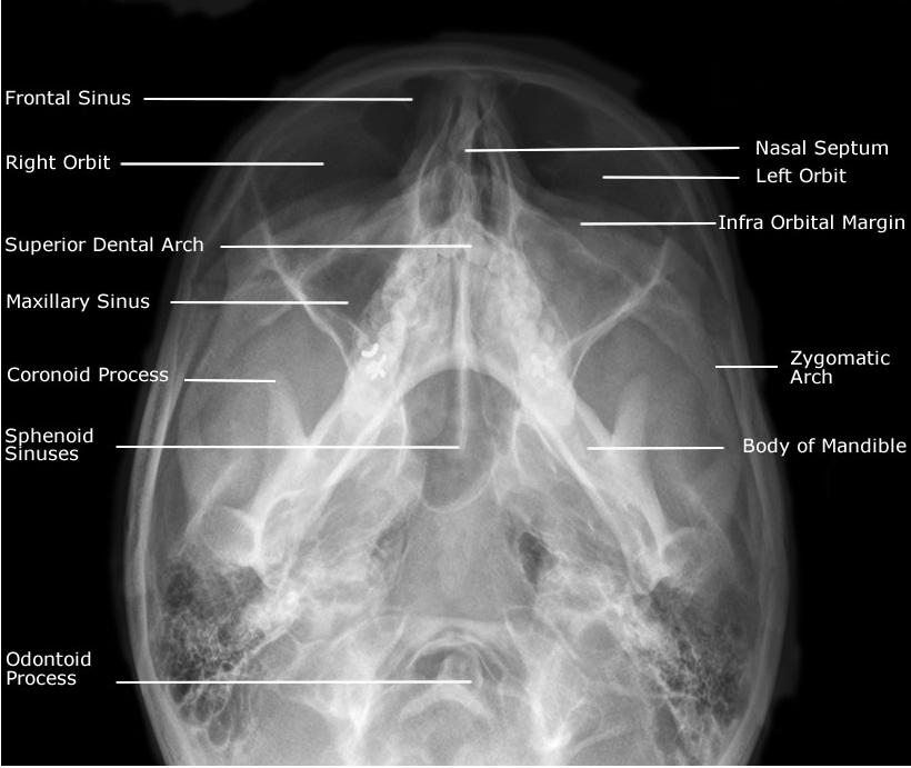 Occipito Mental 30° (OM30) View Anatomy | My Radiology Files