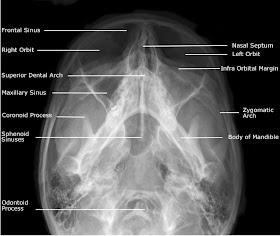 Adult+Facial+Bones+-+Occipito+Mental+30%25C2%25B0+%2528OM30%2529+View.jpg