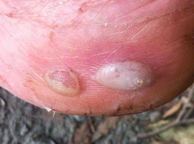 two blisters on side of foot