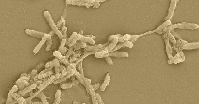 Iron Oxidizing Bacteria