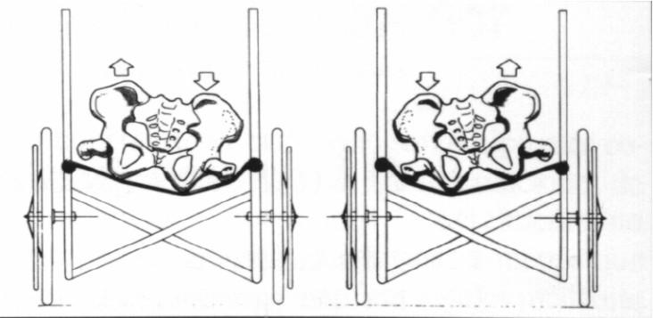La importancia una buena postura en la silla de ruedas for Sillas para una buena postura