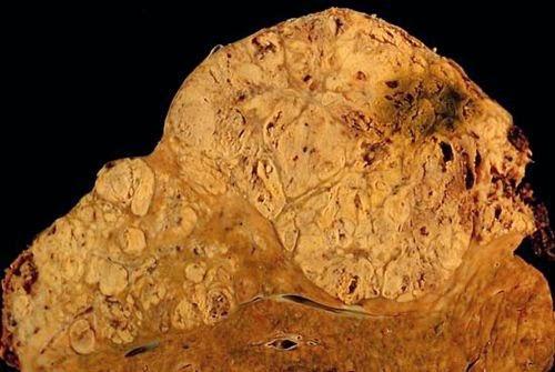 Gut microbiota suppress liver cancer | Immunopaedia