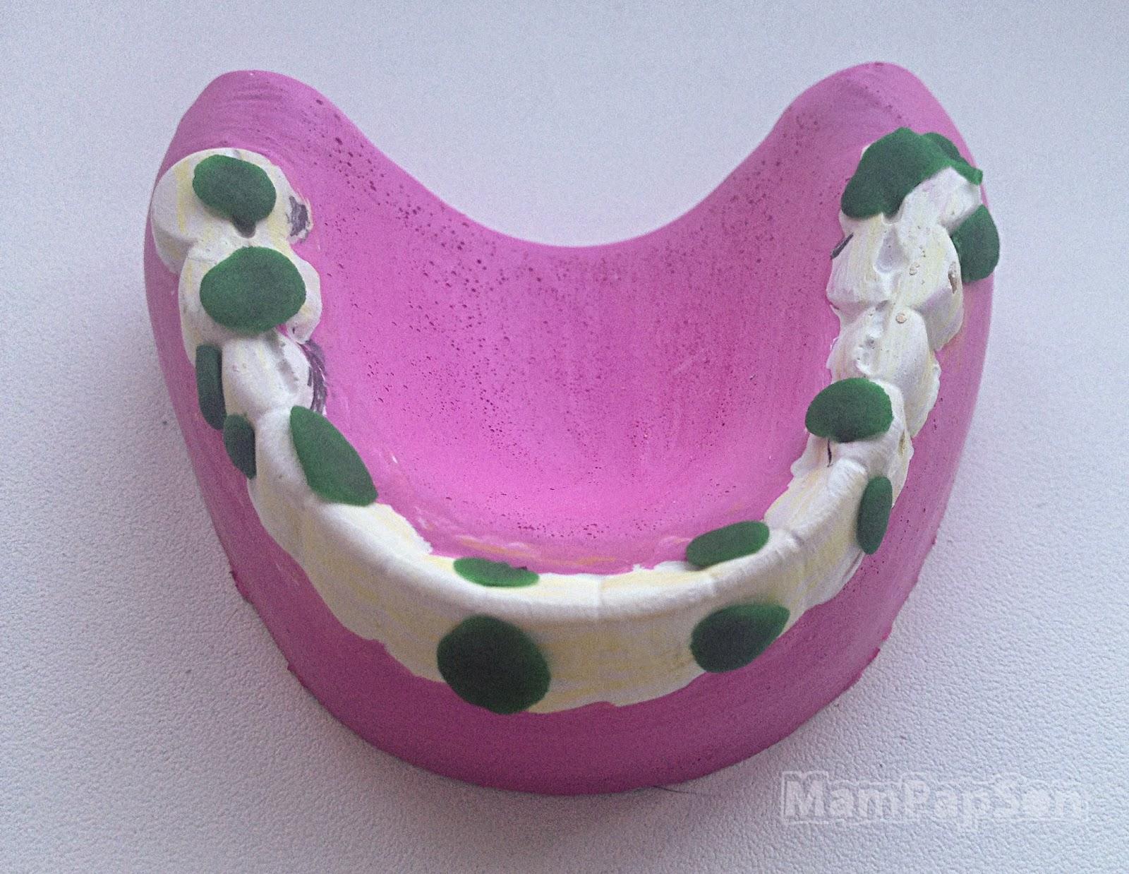 гипсовая челюсть с пломбами