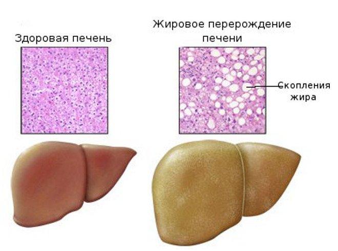 Народный метод лечения кисты печени