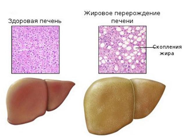 лептинорезистентность и жировая болезнь печени