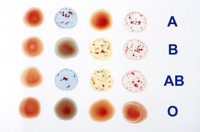 ¿Cómo se comprueba el grupo sanguíneo?