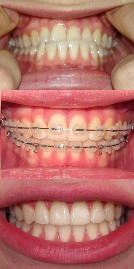 before+and+after+braces%3B+ceramic+braces+blog+underbite+before+during ...