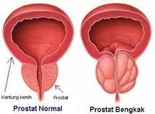 Cara Mengobati Pembengkakan Prostat