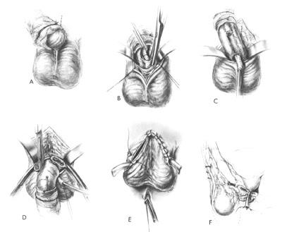http://4.bp.blogspot.com/-nZUbnNJeYYA/TavhjIStLYI/AAAAAAAAAaU/TJRoOD2CzI4/s1600/total+penectomy1.jpg