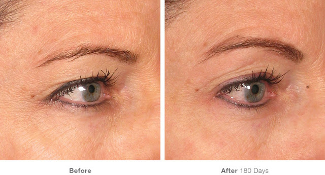 Ultherapy-Before-And-After-Brow