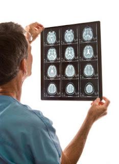 сканирование мозга при аутизме