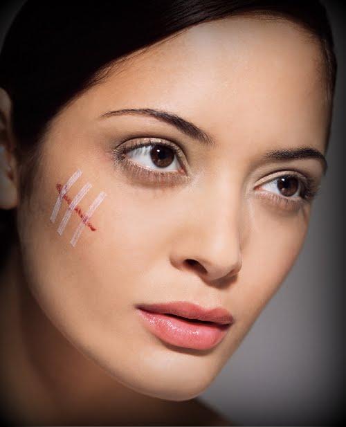 6 langkah untuk hilangkan bekas luka