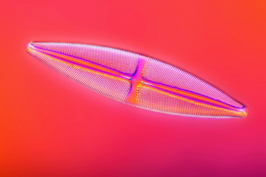 Diatom under the microscope
