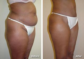 Abdominoplastia imagens: Antes e depois