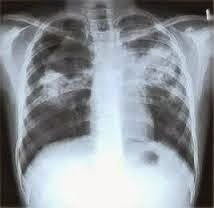 obat penyakit paru paru basah secara tradisional