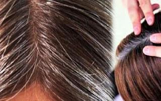 rambut-beruban
