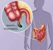 Gejala Penyakit Usus Buntu Dan Tips Mengobatinya