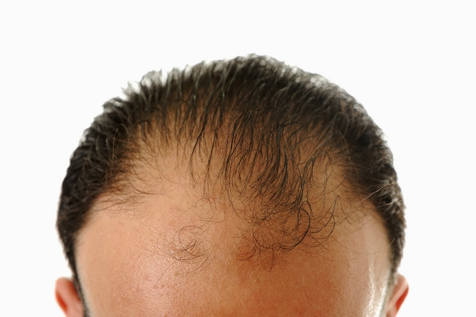 Some Major Side effects of Hair Transplant Surgery