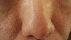 perawatan kulit natural alami mengecilkan pori-pori