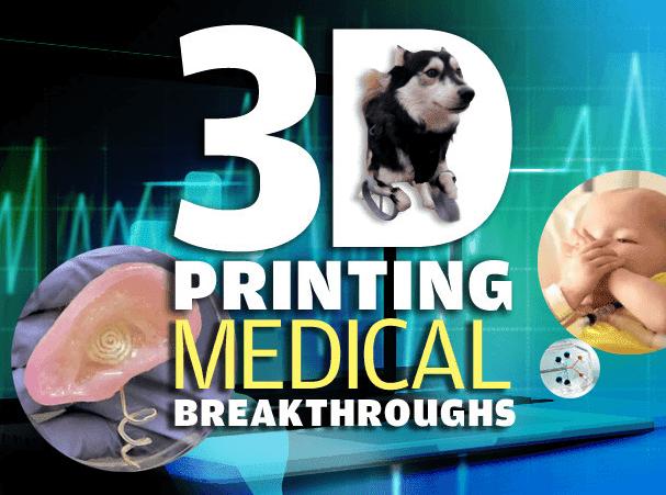 3D MEDICAL PRINTING