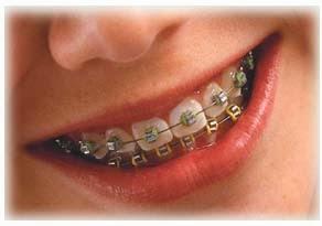 Mairi: Avaliação dentária com Dr. Eduardo Pereira