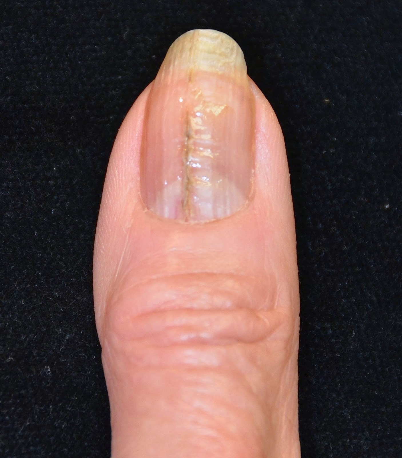 VIRTUAL GRAND ROUNDS IN DERMATOLOGY 2.0: Median Nail Dystrophy