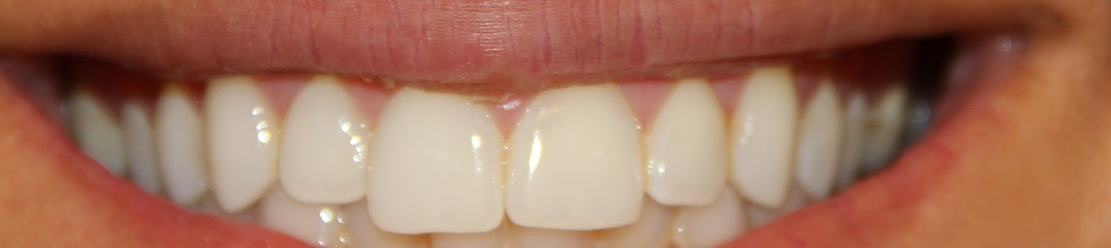 Crest 3d white intensive professional effects whitestrips review