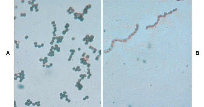 Ciprofloxacin coverage gram positive stain