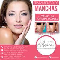 http://www.comerxi.com/tratamiento-de-manchas-faciales-clinica-renacer-uLima-c39-d201500000005536.html