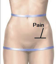 The Mummy Notebook : Round Ligament Pain & Sacroiliac Joint Pain ...