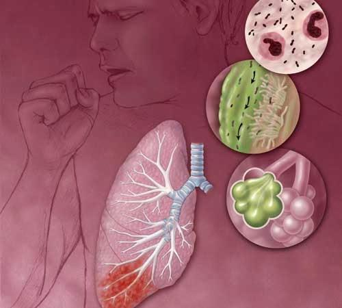Cara Cepat Menyembuhkan Penyakit Ispa