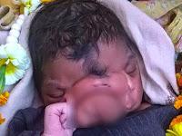 Lahir Mempunyai 'Belalai,' Bayi Disembah Bak Dewa